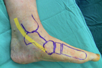 Anatomy-posttib